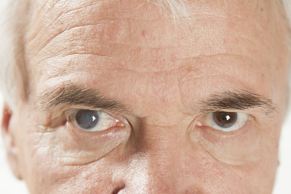 senior man with cataracts