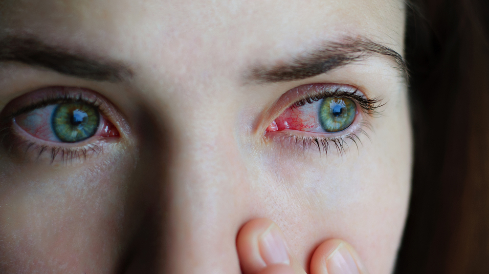 Woman with an eye infection needs treatment from an eye doctor.